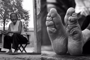 donne-cina-piedi-di-loto-fasciati-orig_main